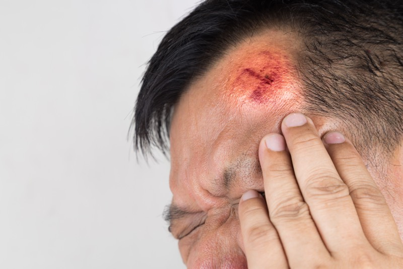 Signs and Symptoms of a Head Injury