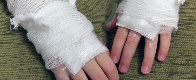 How to Treat Burns and Scalds
